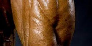 Quadriceps