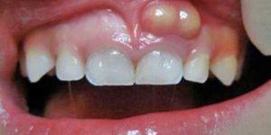 Abscesso Dental