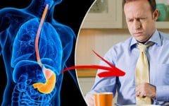 Acalasia – O que é, Sintomase Tratamentos