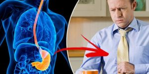 Acalasia O que é Sintomas e Tratamentos 1