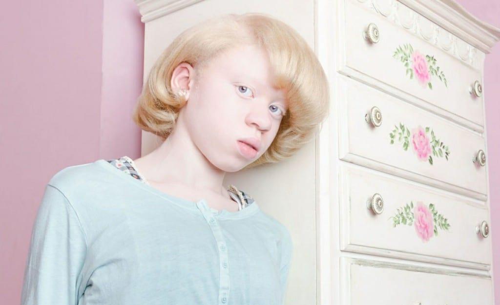 Tratamento Para o Albinismo