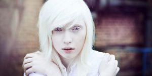 Albinismo Albinismo 4