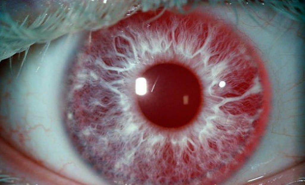 Principais Tipos deAlbinismo Ocular