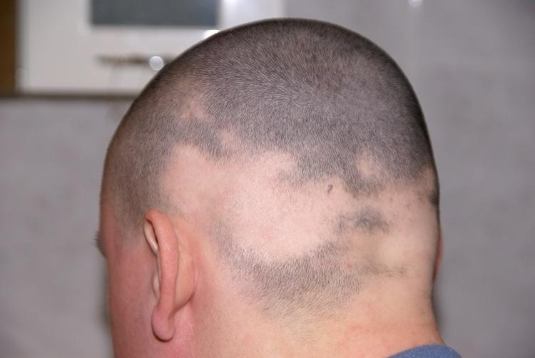 Alopecia Areata – O que é, Causas, Sintomas e Tratamentos!