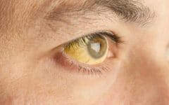 Os 4 Principais Sintomas da Anemia!