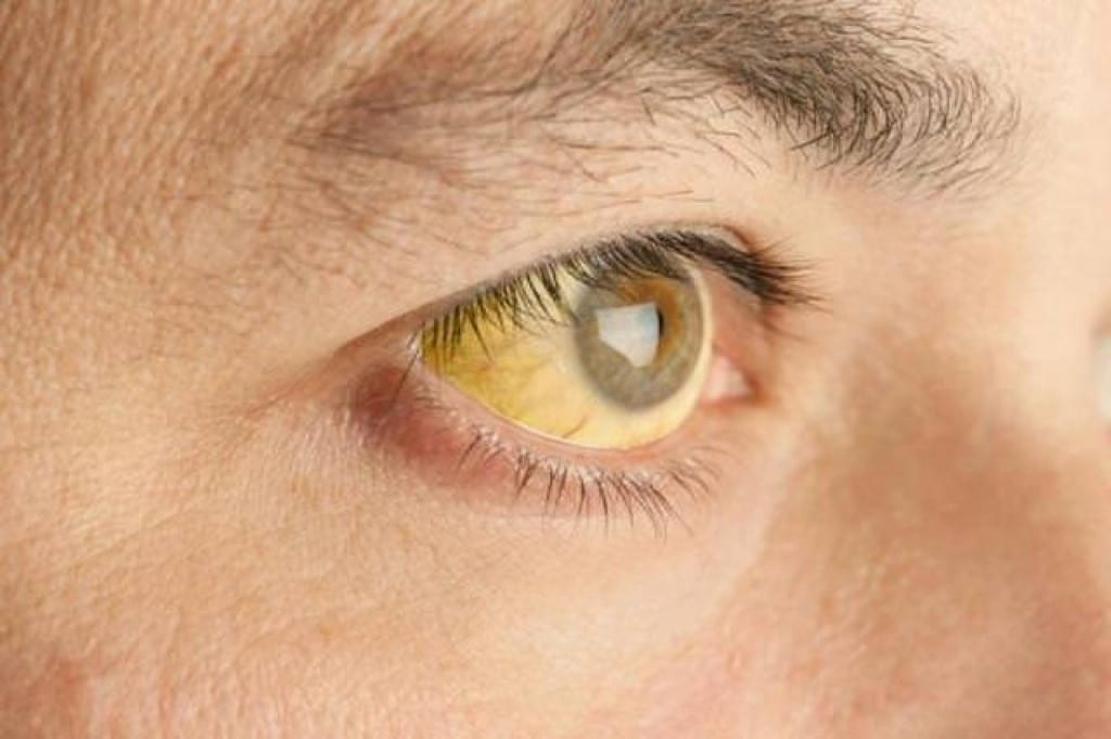 Os 4 Principais Sintomas da Anemia