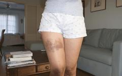 Anemia Aplástica – O que é, Causas, Sintomas e Tratamentos!
