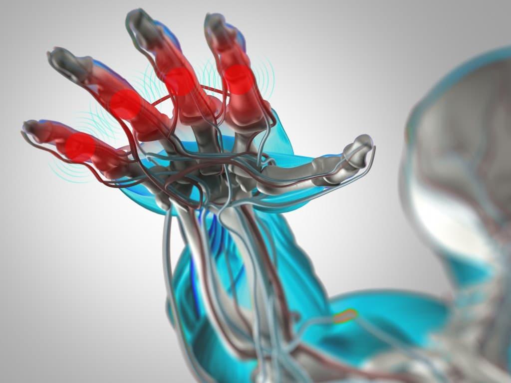 As 6 Principais Causas da Artrite