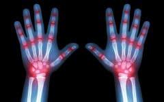 Artrite – O que é, Causas, Sintomas e Tratamentos!