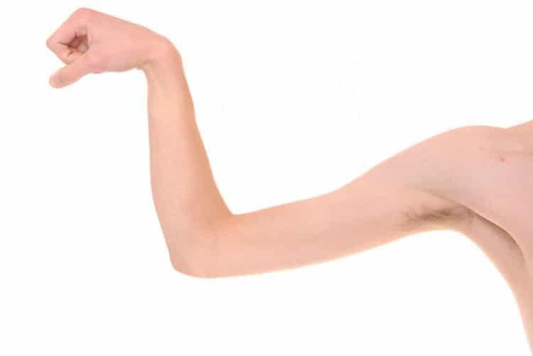 Atrofia Muscular 1