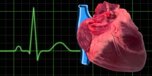 Bloqueio Cardíaco 1