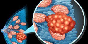 Câncer de Mama Causas Sintomas e Tratamentos