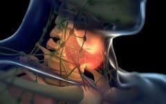 Câncer de Tireoide – O que é, Sintomas e Tratamentos