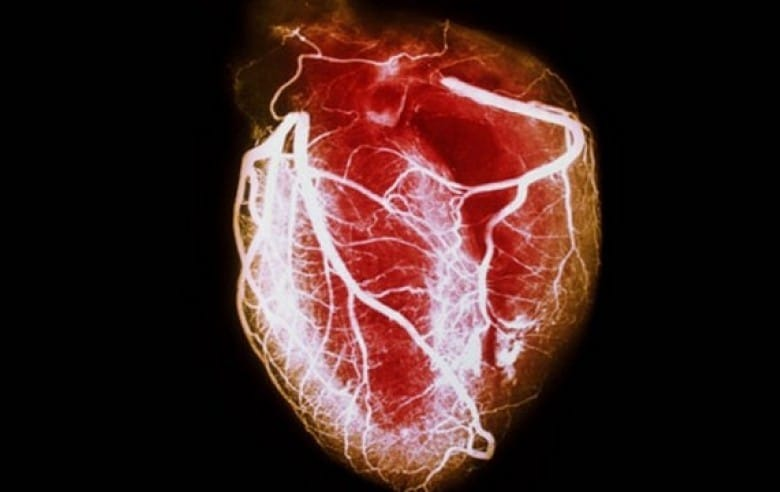 Cardiomiopatia – O que é, Causas, Sintomas e Tratamentos!