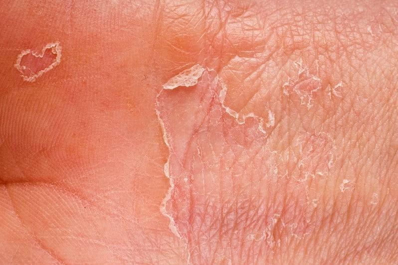 Sintomas da Dermatite Esfoliativa