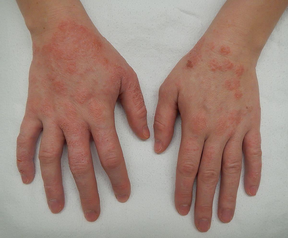 Dermatite Numular 1