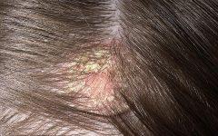 Dermatite Seborreica – O que é, Causas e Tratamentos