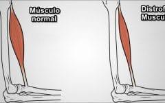 Distrofia Muscular – O que é, Sintomas e Tratamentos