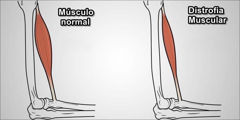 Distrofia Muscular distrofia muscular