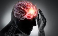 Enxaqueca – O que é Causas, Sintomas e Tratamento
