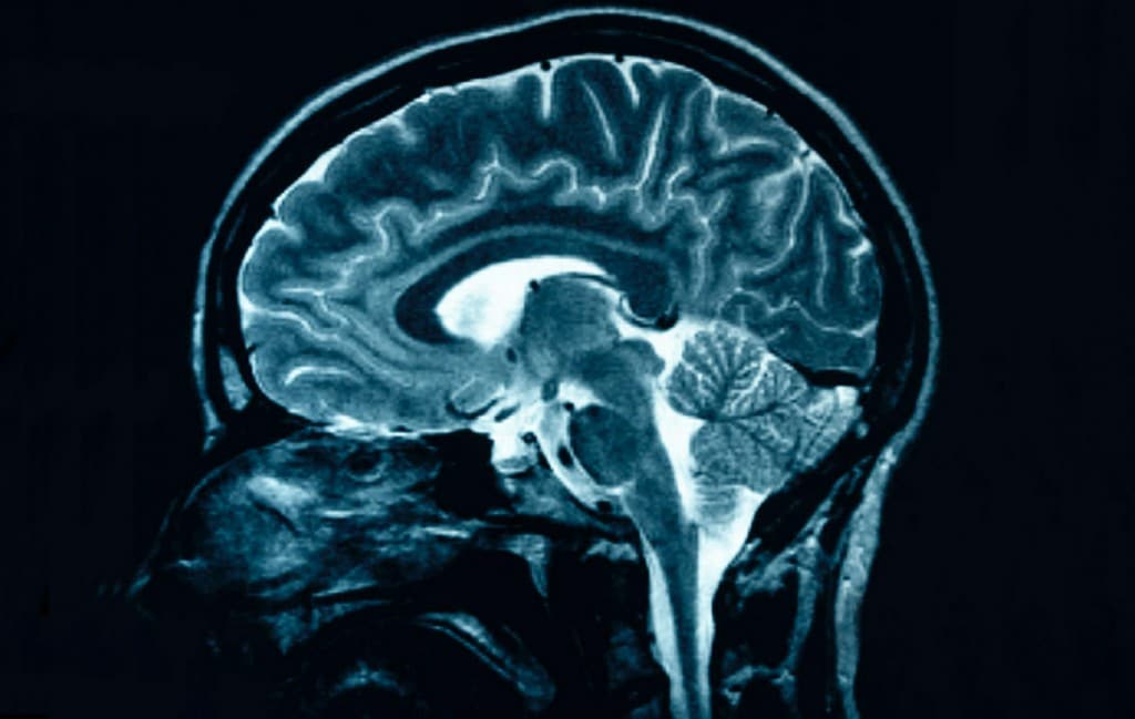 Fatores de risco para a Esclerose Lateral Amiotrofica