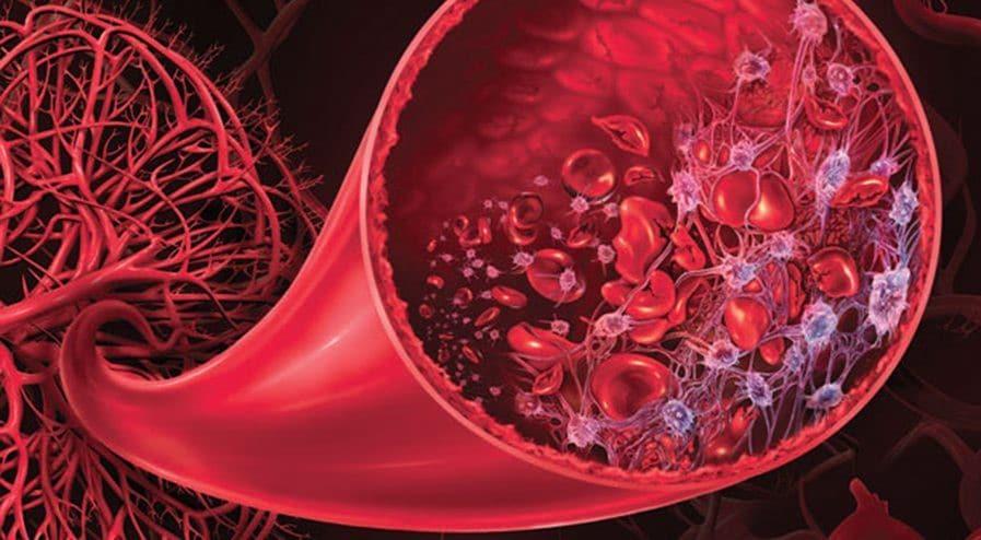 Hemoglobinúria Paroxística Noturna