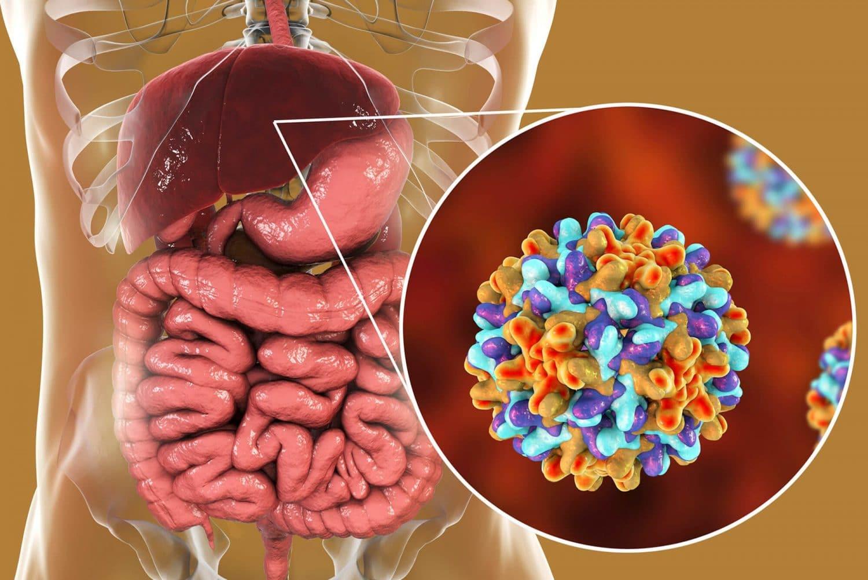 Hepatite A –O que é, Sintomas e Tratamentos!
