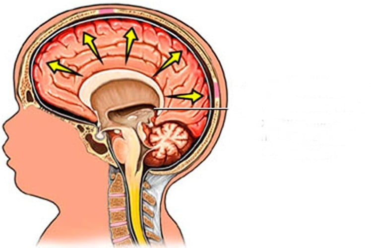 Causas da Hidrocefalia