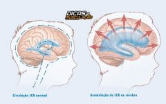 Hidrocefalia – O que é, Causas, Sintomas e Tratamentos