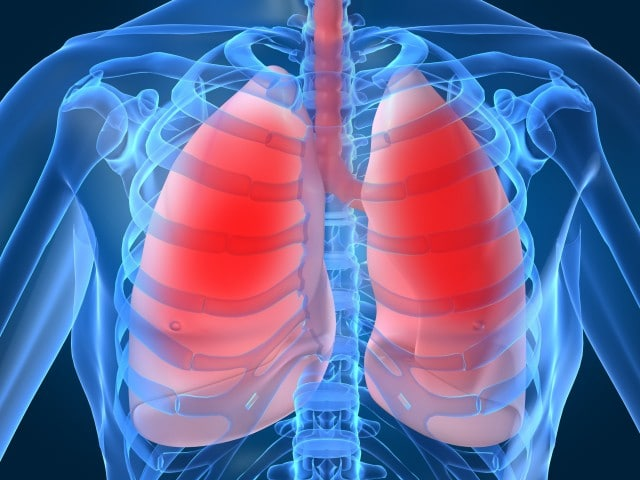 Hipertensão Pulmonar – O que é, Sintomas e Tratamentos