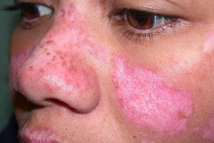 Principais Causas da Doença de Lupus