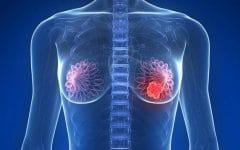 As 10 Maneiras de Prevenir o Câncer de Mama
