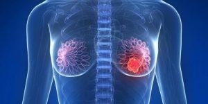Maneiras de Prevenir o Câncer de Mama