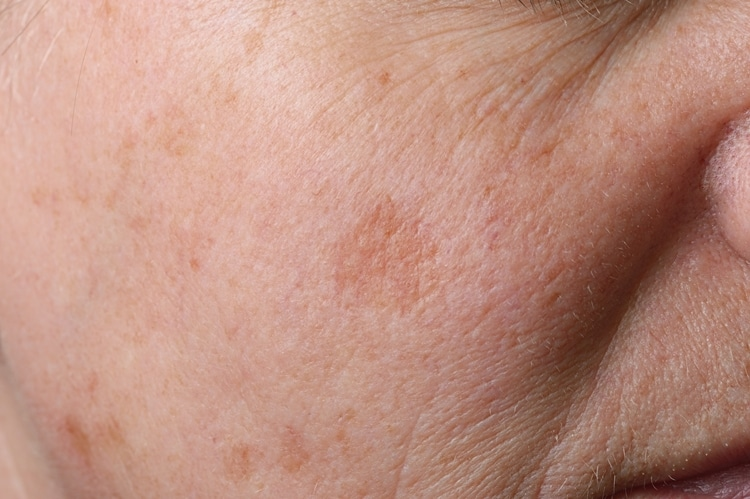 Causas do Melasma