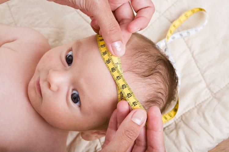 Microcefalia – O que é, Causas, Sintomas e Tratamentos