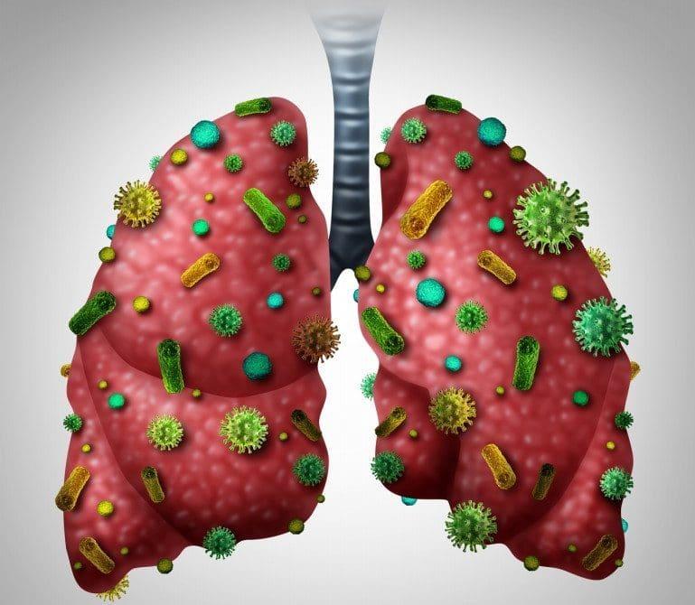 Pneumonia 1 e1500573744397