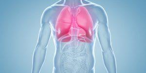 Pneumonia 2 e1500579606835
