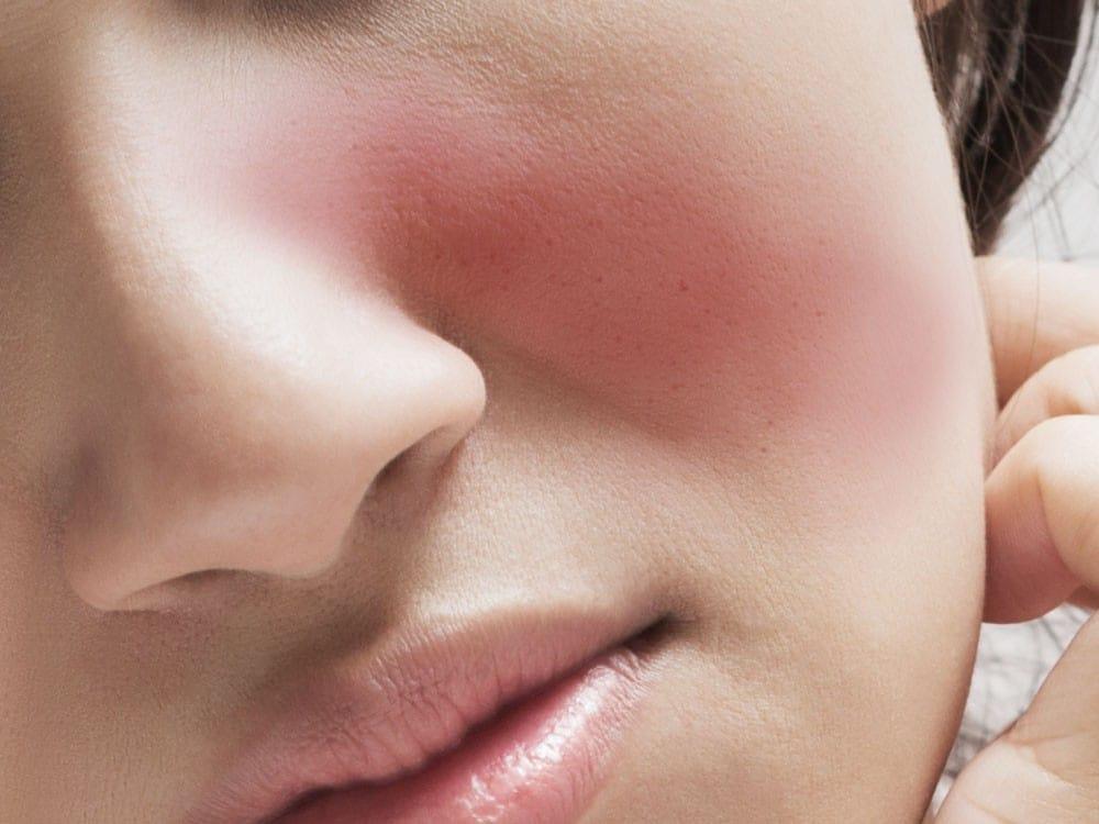 As 6 Principais Causas da Doença de Lúpus