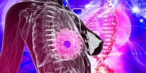 Principais Sintomas de Câncer de Mama 1
