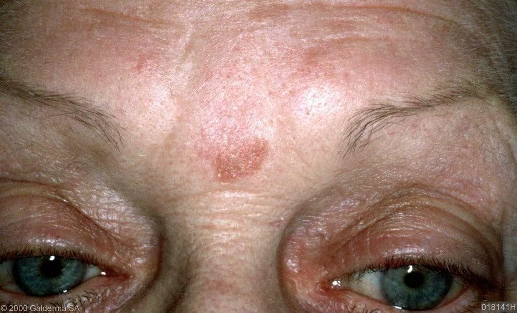 Sintomas da Ceratose Actínica