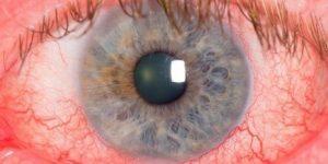 Rosácea Ocular 1 1
