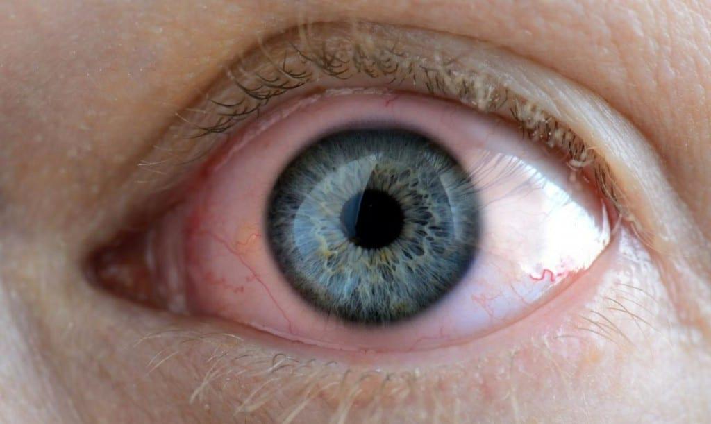 Rosácea Ocular 2