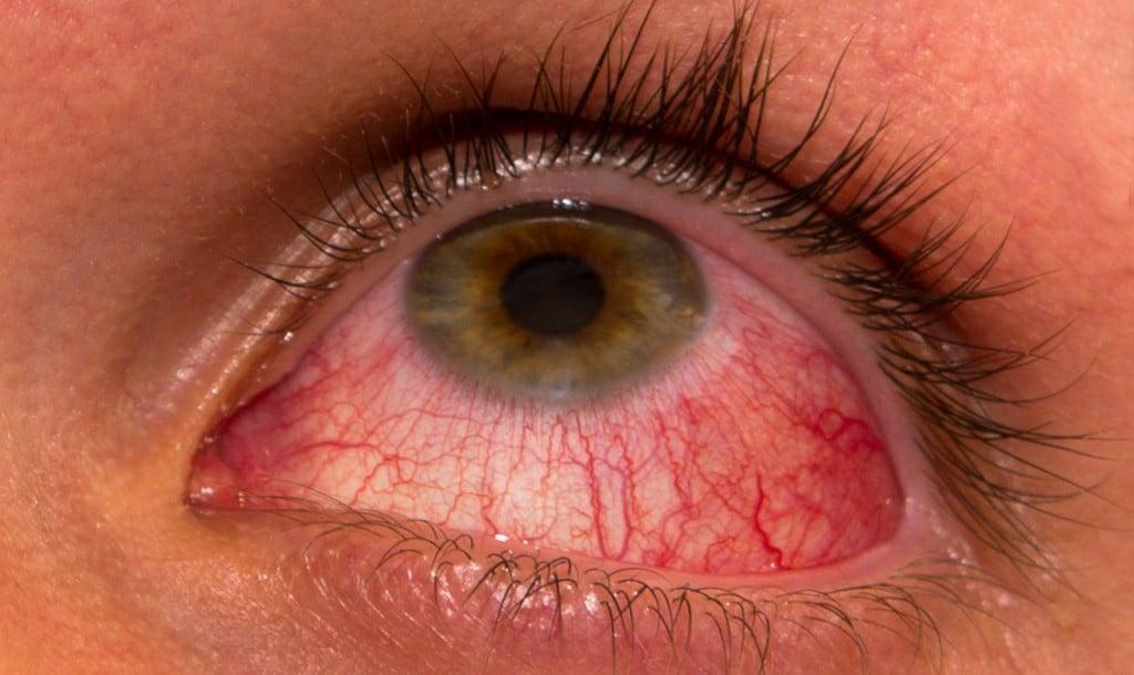 Principais Sintomas daRosacea Ocular