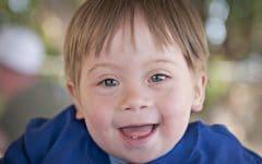 Síndrome de Down – Causas, Sintomas e tratamentos