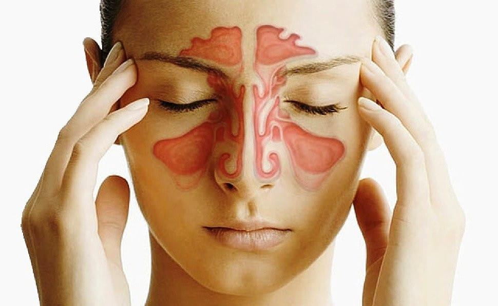 Principais Sintomas da Sinusite