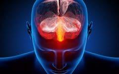 Vertebrobasilar – O que é, Sintomas e Tratamentos!