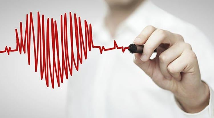 arritmia cardiaca1