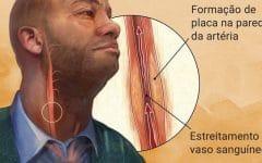 Arteriosclerose –O que é, Causas, Sintomas e Tratamentos!