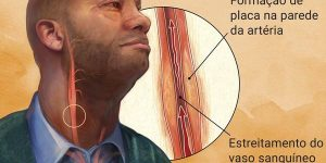arteriosclerose 1
