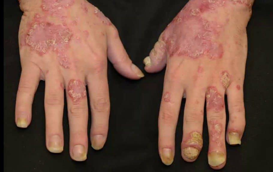 artrite psoriática 1 e1501092866515